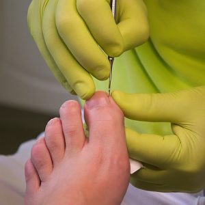 foot-care-3557103_640